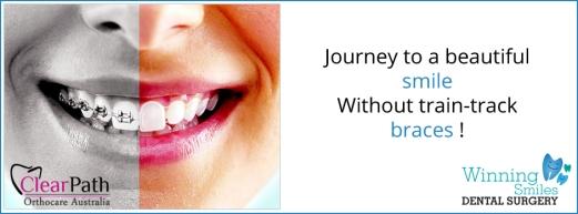 Dentist open 7 Days Blacktown or Parramatta